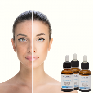 treat by chemical peels