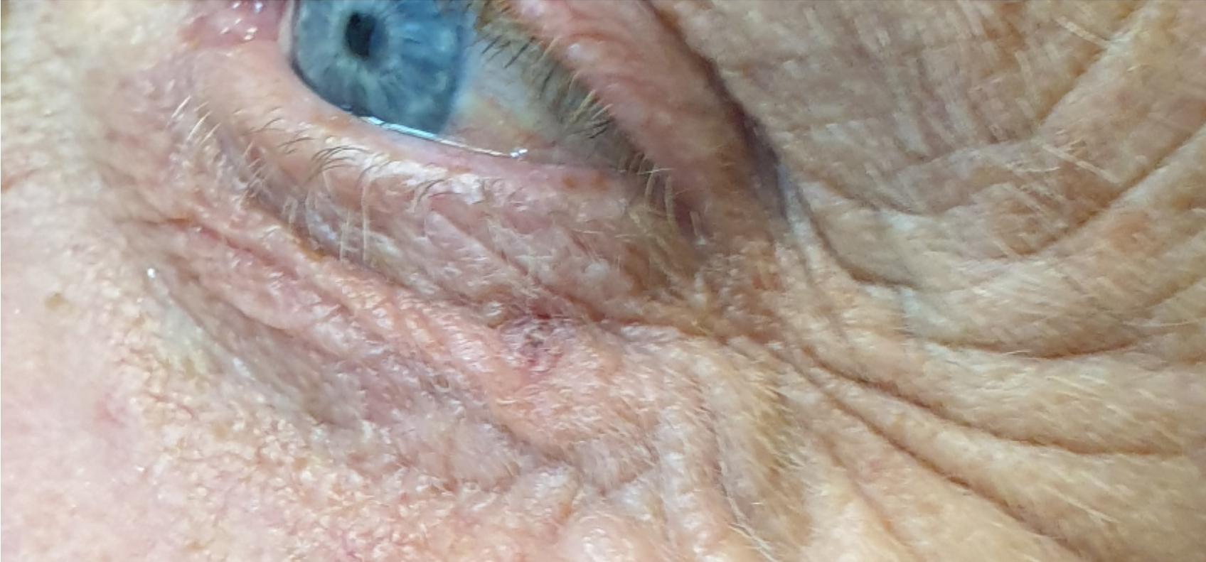 Skin tag removed